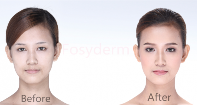Solution meso sans couleur d'ha Mesotherapy de visage d'injection de gel de l'acide hyaluronique 2.5ml
